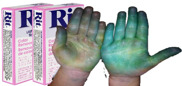 Use Professional Products to Get Fabric Dye off Skin